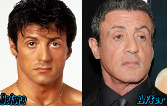 Sylvester Stallone Botox Injection