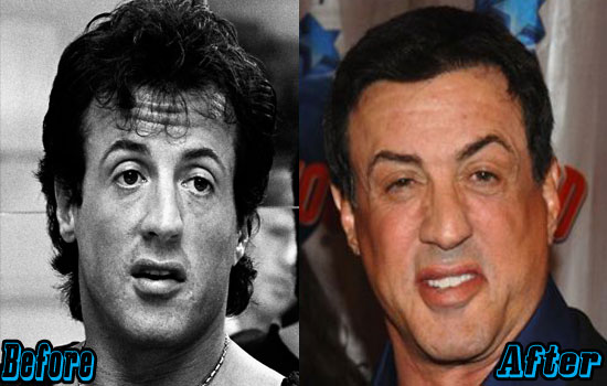 Sylvester Stallone Plastic Surgery Photos