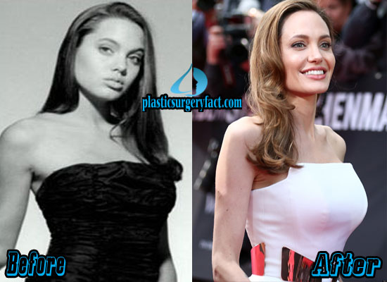 Angelina Jolie Plastic Surgery Before And After Photos - Plastic Surgery Facts-1978