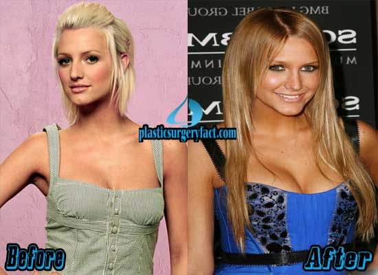 Ashlee Simpson Breast Implants Before and After