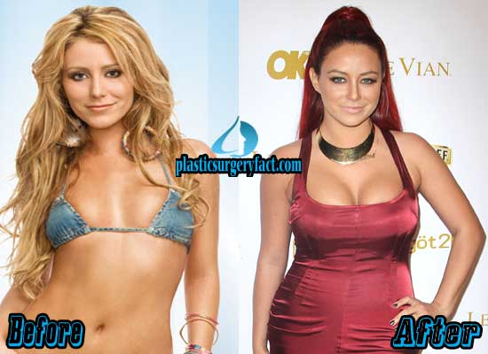 Aubrey O'Day Breast Implants Before and After