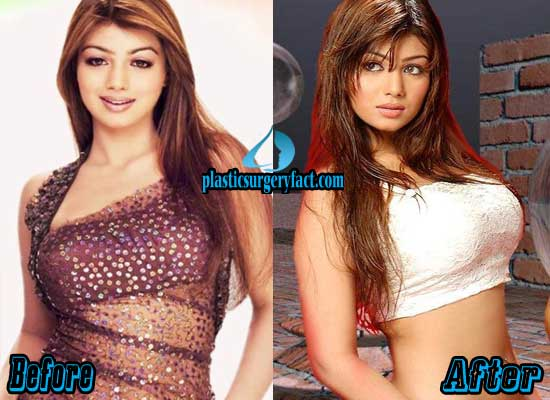 Ayesha Takia Breast Implants Before and After