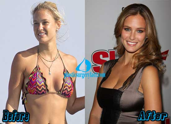 Bar Refaeli Breast Implants Before and After