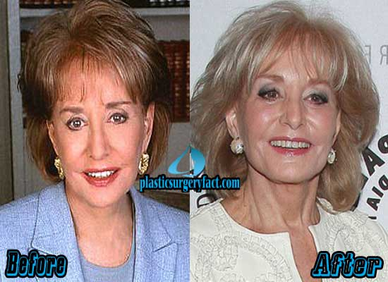 Barbara Walters Before and After Photos