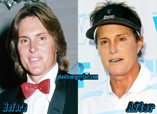 Bruce Jenner Before and After Plastic Surgery
