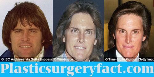 Bruce Jenner Eyebrow Surgery Before and After
