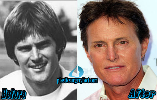 Bruce Jenner Plastic Surgery Before and After