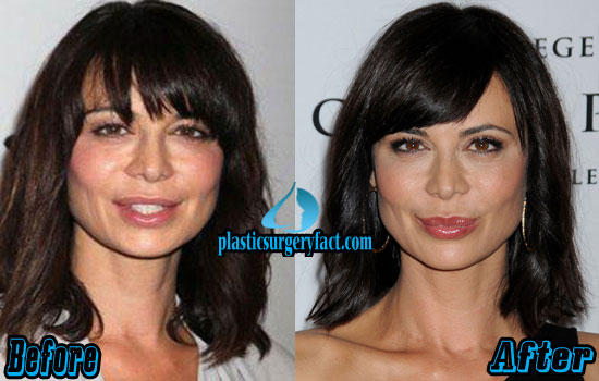 Catherine Bell Nose Job Before and After