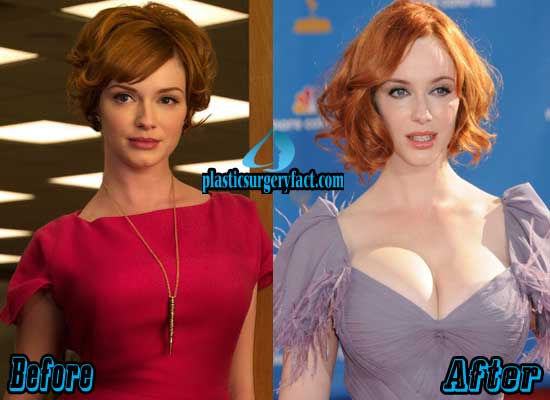 Christina Hendricks Breast Implants Before And After