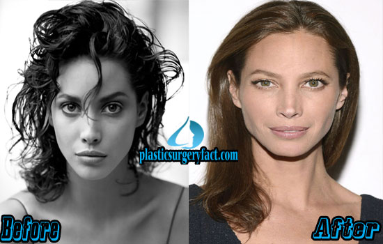 Christy Turlington Nose Job Before and After