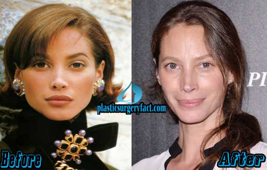 Christy Turlington Plastic Surgery Before and After