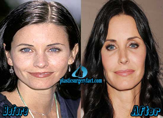 Courteney Cox Plastic Surgery Before and After