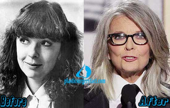Diane Keaton Nose Job Before and After