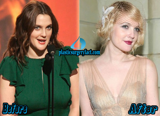 Drew Barrymore Breast Reduction Before and After