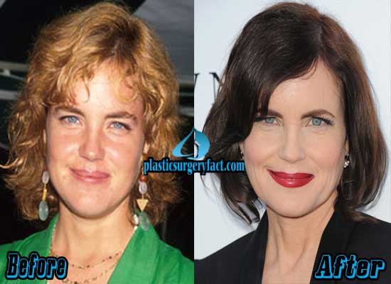 Elizabeth McGovern Before and After Photos