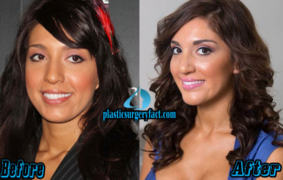 Farrah Abraham Plastic Surgery Before and After