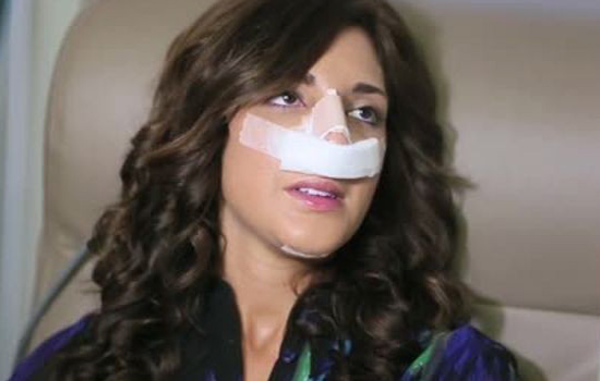 Farrah Abraham Rhinoplasty Surgery Photos