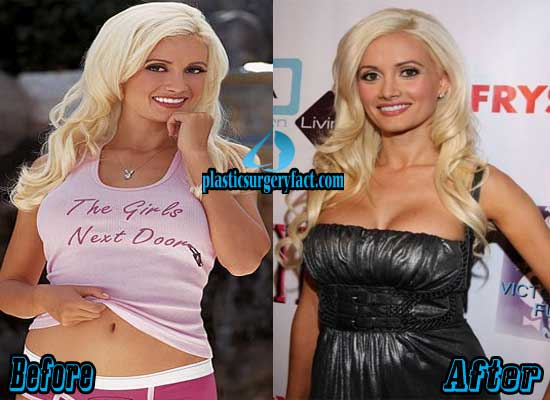 Holly Madison Breast Augmentation Before and After