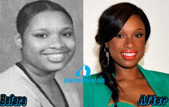 Jennifer Hudson Lips Augmentation Before and After