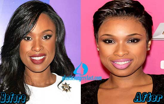 Jennifer Hudson Plastic Surgery Before and After