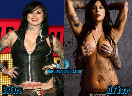 Kat Von D Breast Implants Before and After
