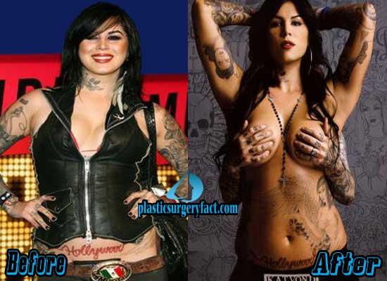 Kat von d tits pics, young grils gets large new breasts