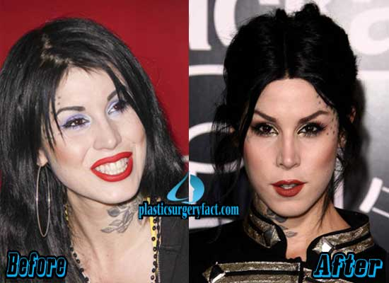 Kat Von D Nose Job Before and After