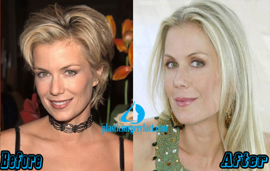 Katherine Kelly Lang Before and After Photos