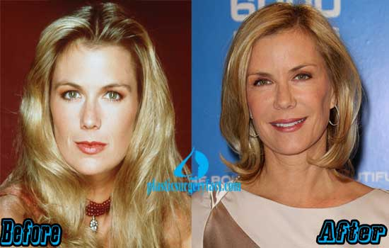 Katherine Kelly Lang Plastic Surgery Before and After