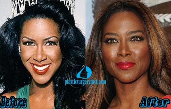 Kenya Moore Nose Job Before and After