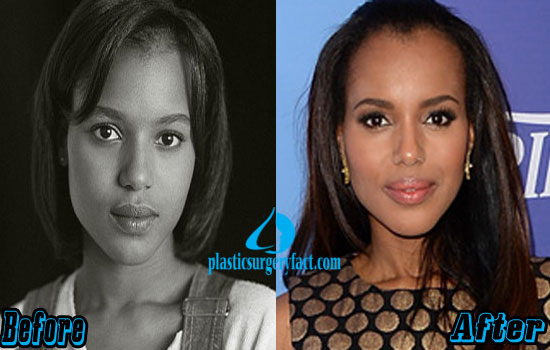 Kerry Washington Nose Job Before and After