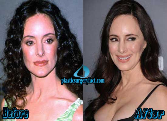 Madeleine Stowe Before and After Photos