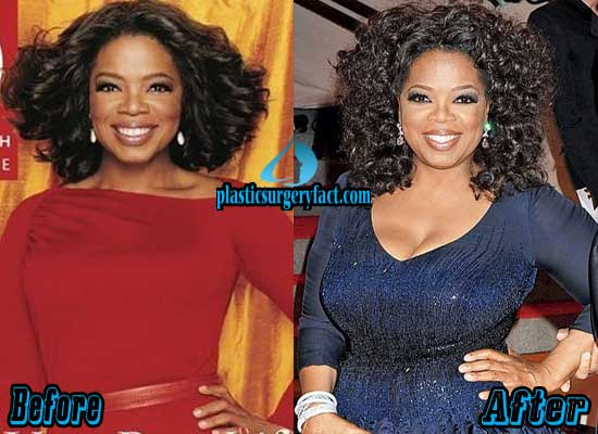Oprah Winfrey Breast Implants Before and After