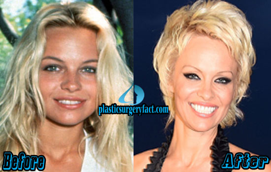 Pamela Anderson Before and After Plastic Surgery