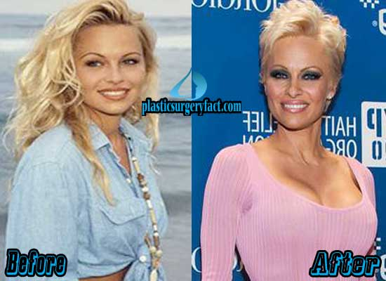 Pamela Anderson Boob Job Before and After