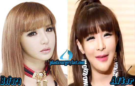 Park Bom Before and After Photos
