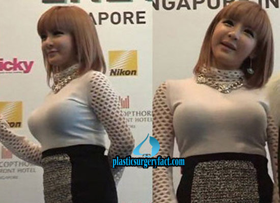 Park Bom Breast Implants