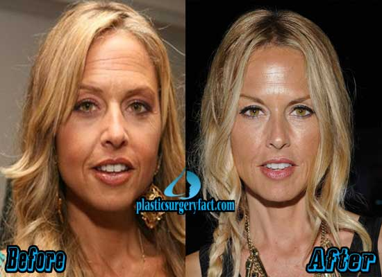 Rachel Zoe Before and After Photos