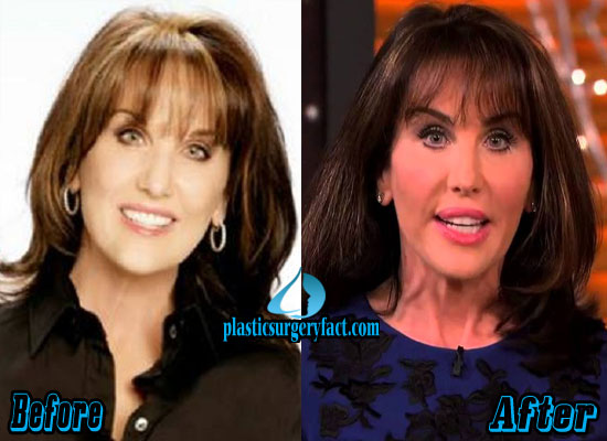 Robin McGraw Before and After Photos