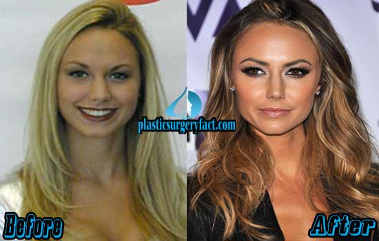 Stacy Keibler Nose Job Before and After