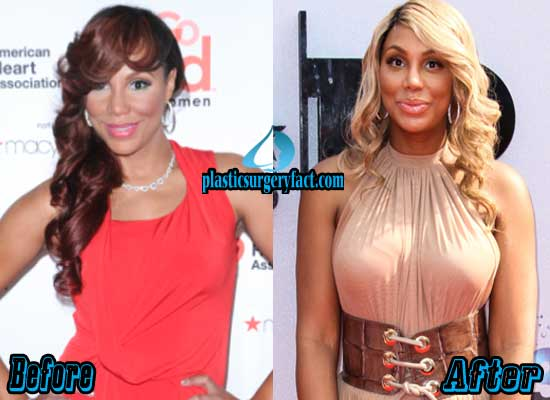 Tamar Braxton Breast Implants