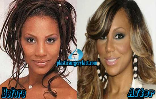 Tamar Braxton Plastic Surgery Before and After Pictures