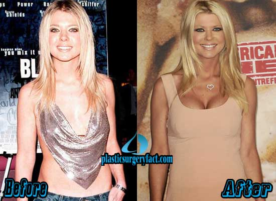 Tara Reid Breast Implants Before and After