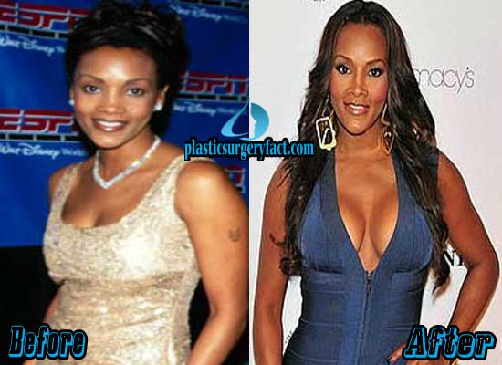 Vivica Fox Breast Implants Before and After