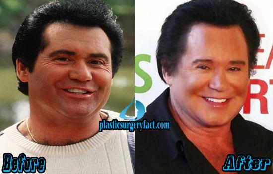 Wayne Newton Before and After Photos