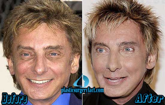Barry Manilow Before and After Photos