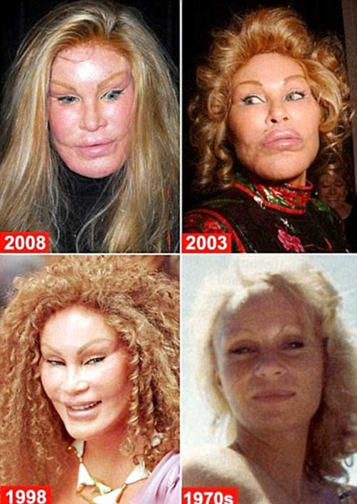 Cat Woman Plastic Surgery Before and After Photos