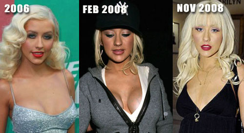 Christina Aguilera Breast Augmentation Before and After