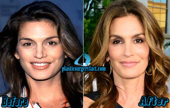 Cindy Crawford Before and After Photos