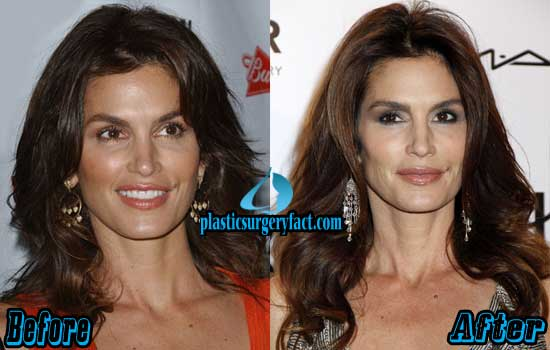 Cindy Crawford Plastic Surgery Before and After